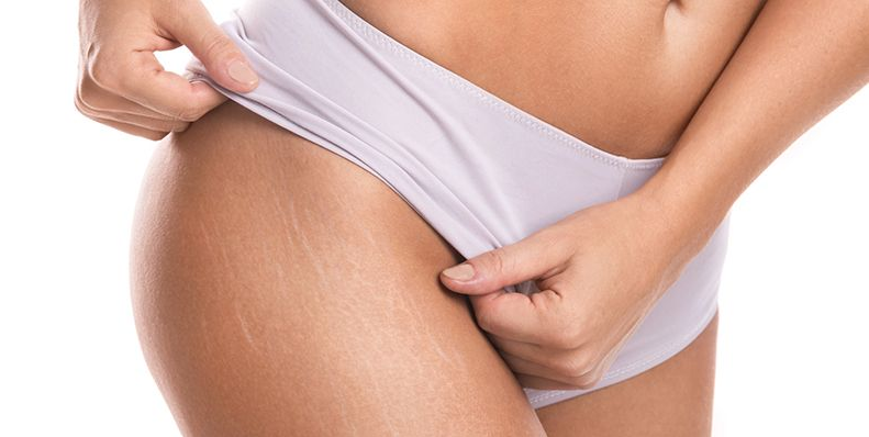 Common problem: Stretch marks in men and women. How to remove or erase them?